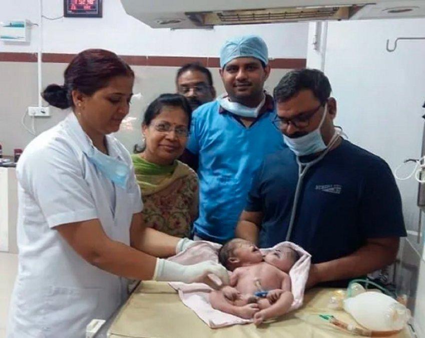 India: Un bebé nació con dos cabezas y tres brazos