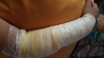 Un perro mordió a una joven y le provocó graves heridas en un brazo
