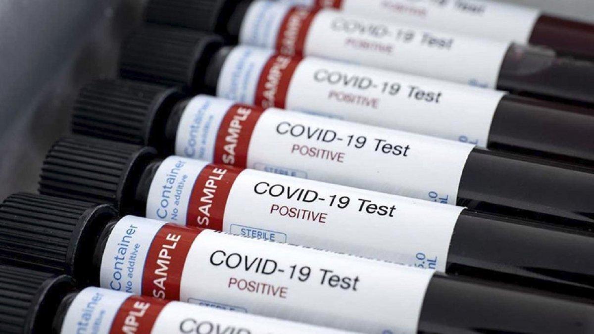 Confirmaron un nuevo caso de COVID-19 en Trelew.