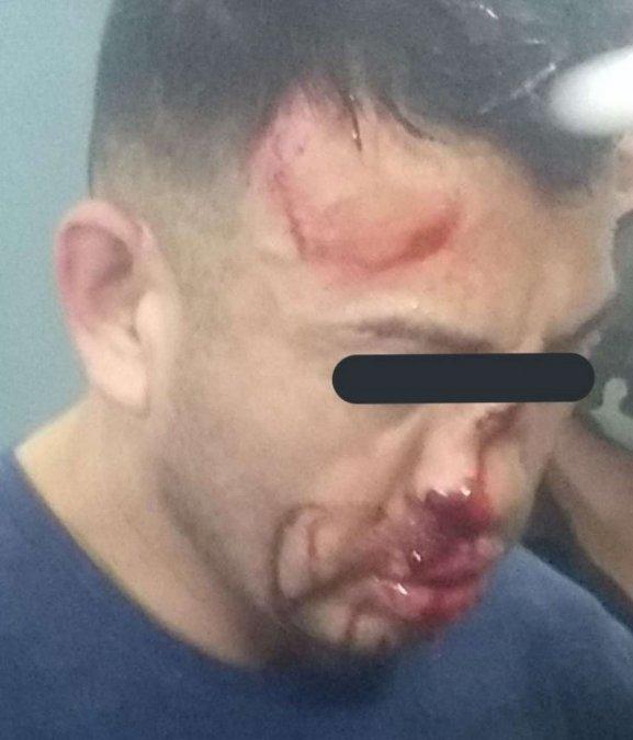 Samuel Llanos recibió una brutal golpiza por parte de los presos.