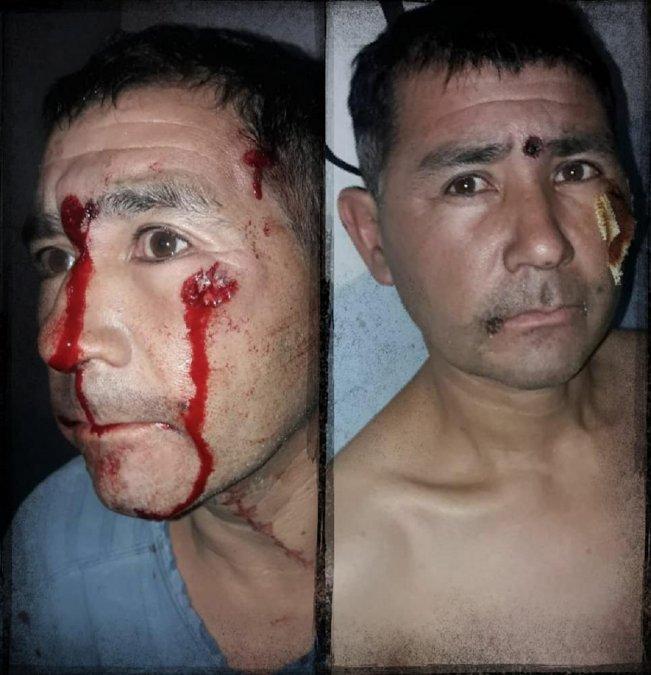 Gabriel Fredes denunció brutalidad policial en el 2020 y hoy denuncia que el ministro Federico Massoni golpeó a su hijo y que le dijo negro de mierda